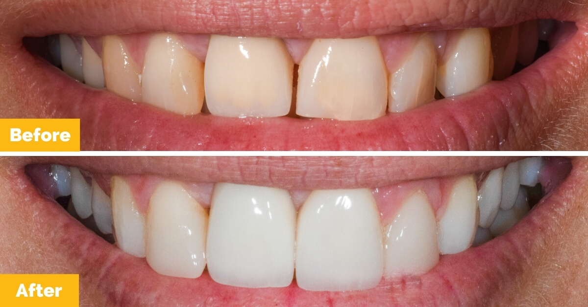 Cara-Seafort-Veneers-Crowns-Teeth-Whitening-Plaza-Dental1