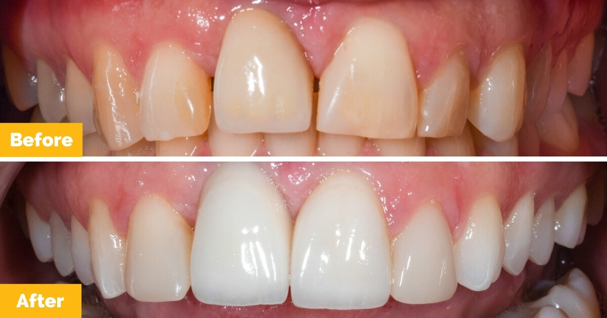 Cara-Seafort-Veneers-Crowns-Teeth-Whitening-Plaza-Dental2