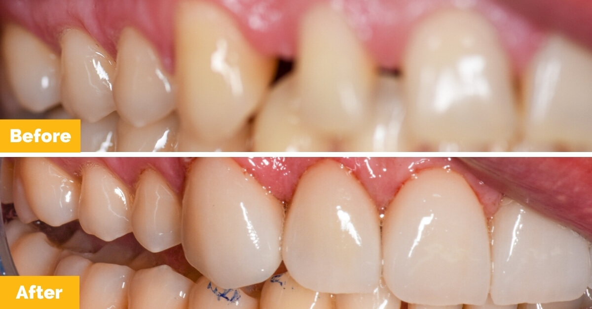 Drew-South-Mackay-Veneers-Plaza-Dental1