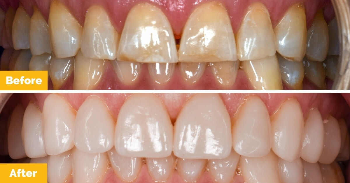 Erik-Mackay-Harbour_Crowns_Veneers_Plaza-Dental2