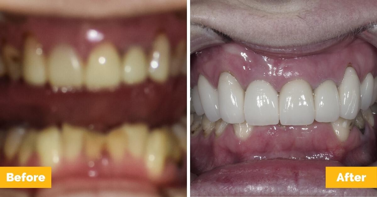 Selena-Eimeo-Implants-Crowns-Bridge-Plaza-Dental1