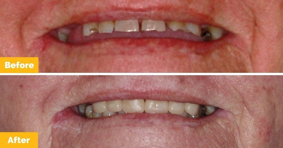 Plaza-Dental_Brenda_Crowns_Mackay-1