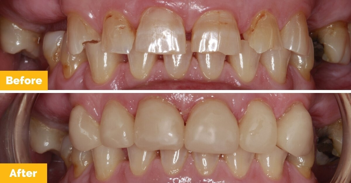 Plaza-Dental_Brenda_Crowns_Mackay