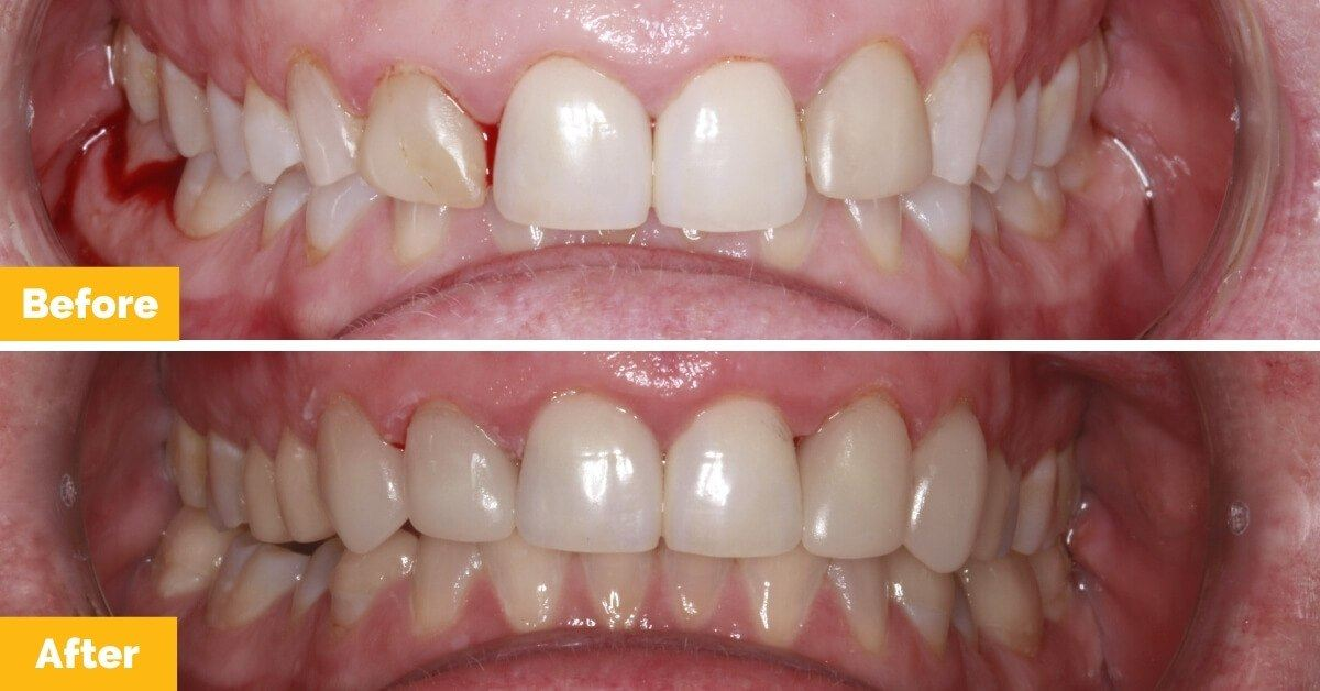 Sharon_Crown_Mackay_Before-and-After_Plaza-Dental.jpg-nggid0222-ngg0dyn-1200x628x100-00f0w010c010r110f110r010t010