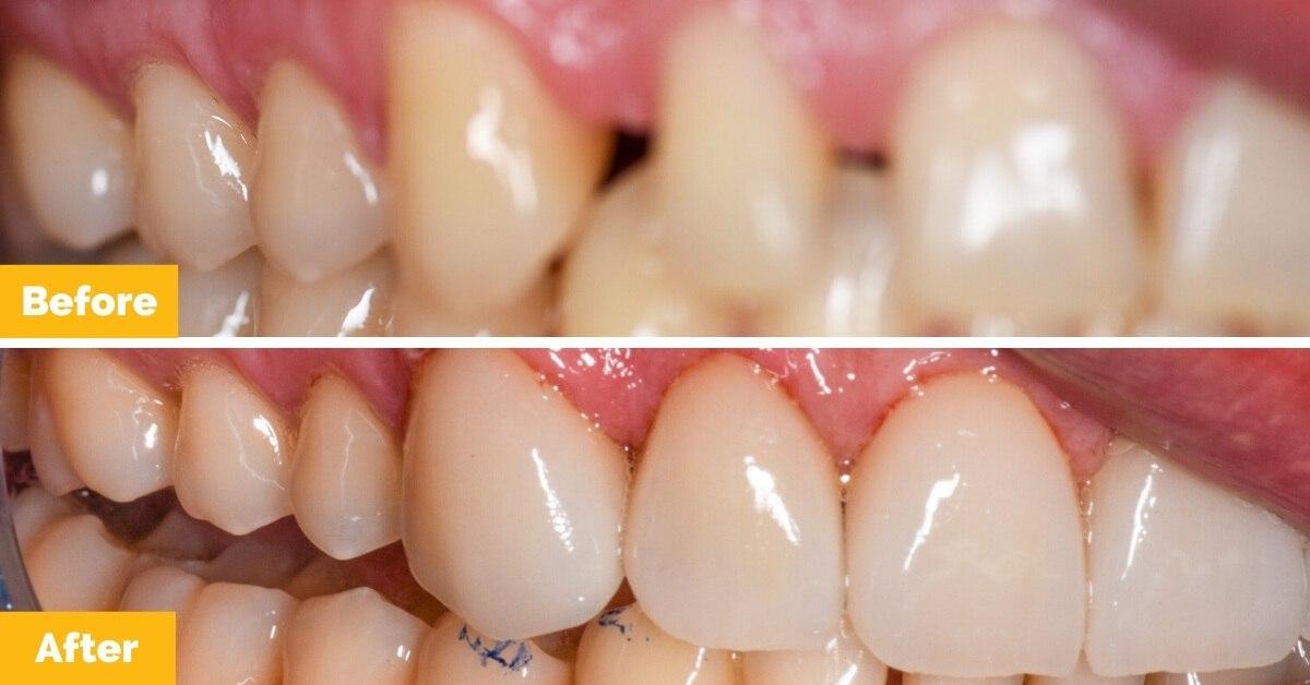 Drew-South-Mackay-Veneers-Plaza-Dental1.jpg-nggid0214-ngg0dyn-1200x628x100-00f0w010c010r110f110r010t010