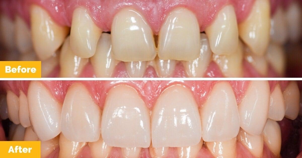 Drew-South-Mackay-Veneers-Plaza-Dental2