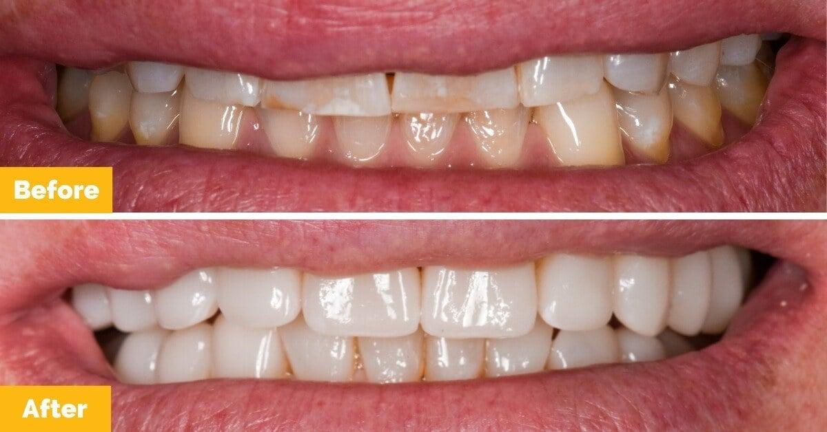Erik-Mackay-Harbour_Crowns_Veneers_Plaza-Dental1