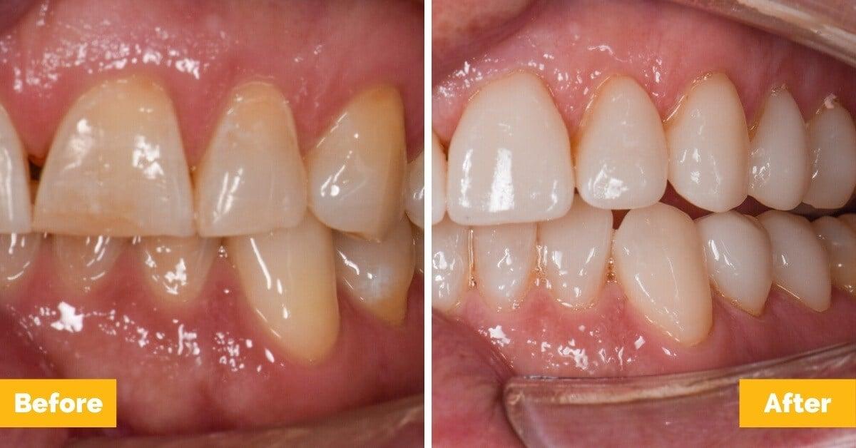 Erik-Mackay-Harbour_Crowns_Veneers_Plaza-Dental3