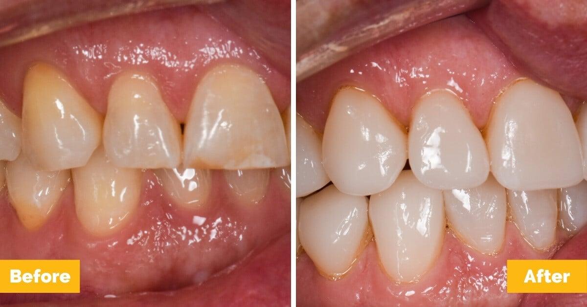 Erik-Mackay-Harbour_Crowns_Veneers_Plaza-Dental4