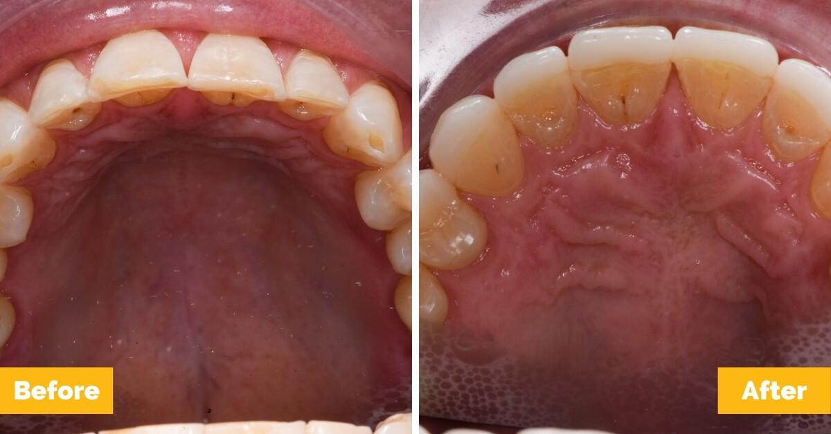Erik-Mackay-Harbour_Crowns_Veneers_Plaza-Dental5