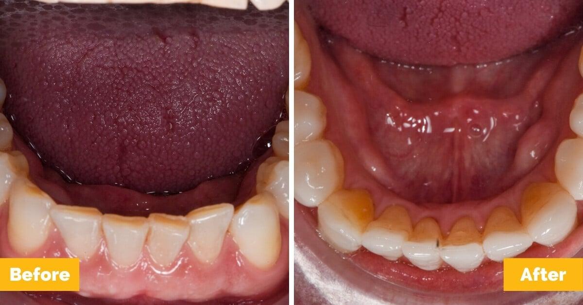 Erik-Mackay-Harbour_Crowns_Veneers_Plaza-Dental6