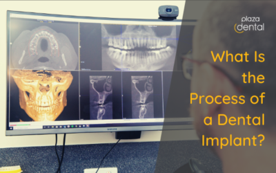 What Is the Process of a Dental Implant?