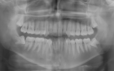When Should Wisdom Teeth Be Removed?