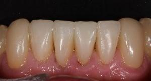 Different Types of Dental Veneers