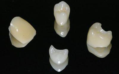 Get a Dental Crown in One Visit