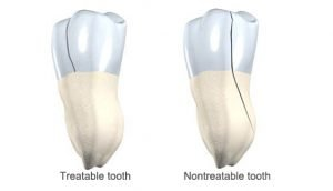 How to Repair Cracked Tooth