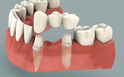 Dental Bridges – What Are They and How Do They Work?