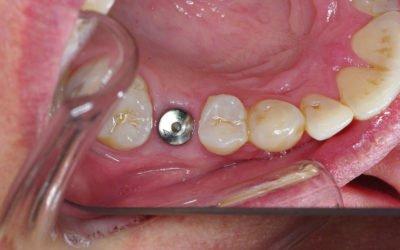 Replacing Missing Teeth – Dental Implants