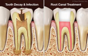 Root Canal Treatment Vs Straight Extraction