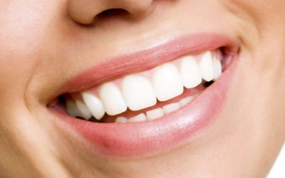 How to Fix Discoloured Teeth