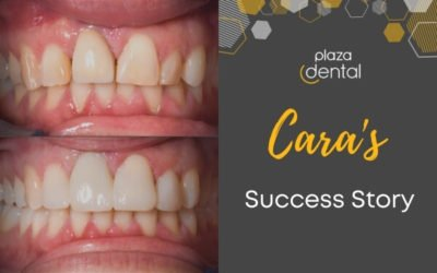 Cara's Smile Makeover in Mackay