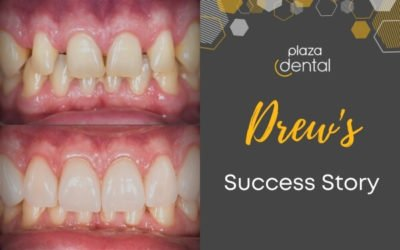 Drew's Smile Makeover in Mackay