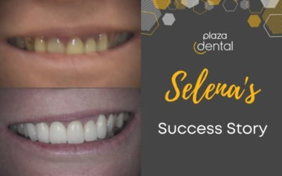 Selena's Smile Makeover in Mackay