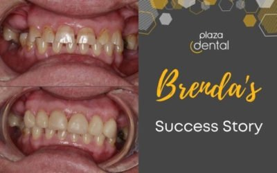 Brenda's Smile Makeover in Mackay