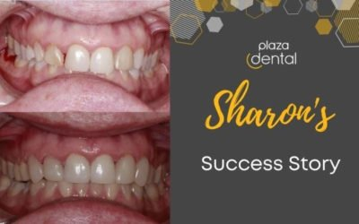 Sharon's Smile Makeover in Mackay